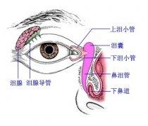 新生儿泪囊炎的泪囊按摩方法