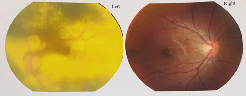 11岁男孩左眼视力骤降,只能看清30厘米内