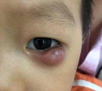 """4岁男童眼皮里长小""""黄豆"""",险"""